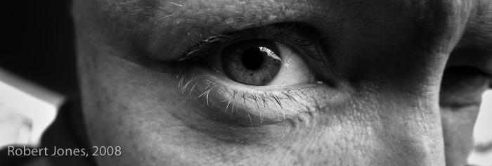 my-right-eye1